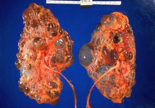 Polycystic Kidney Disease Gross Pathology