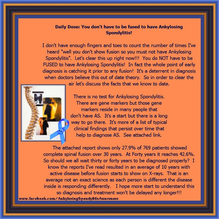 """living through the pain of ankylosing """"i went through so many doctors and had so many tests, and still no one knew what was going on with me, mack says  living with ankylosing spondylitis  """"and back pain from ankylosing ."""