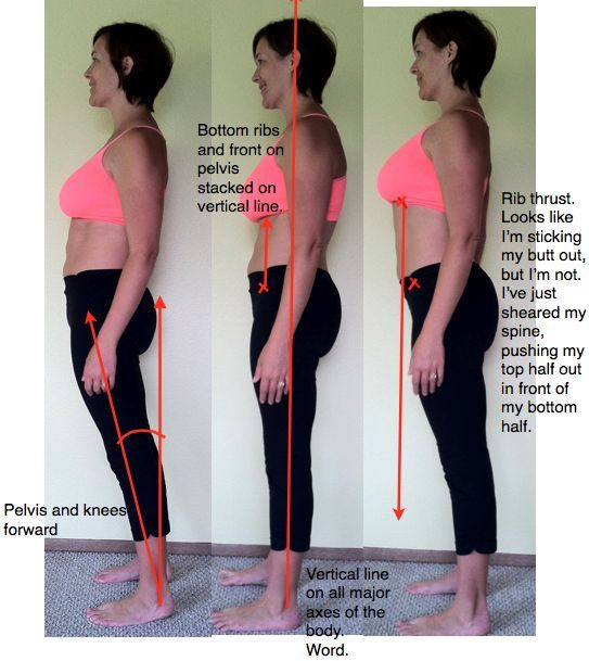 8 Best Diastasis Recti Images On Pinterest Workouts