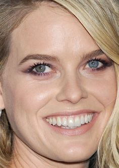 Alice Eve. Sectoral heterochromia. Blue + green in her right eye, while her left eye is completely blue.