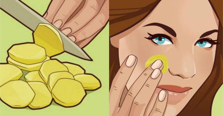 Куркума Куркума предлагает многочисленные преимущества для здоровья, обладает мощным противовоспалительным действием, а также отлично подходит для кожи. Применение маски с куркумой один или два раза в неделю дает отличные результаты. Это улучшит тонус кожи, уменьшит и устранит пигментные пятна. 1/2 чайной ложки куркумы, 2 чайныеложки нутовой (гороховой) муки, 1столовую ложку сливок перемешайте до образования одноролной …