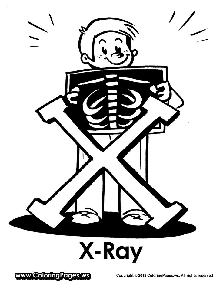 x is for x ray coloring pages - photo #10