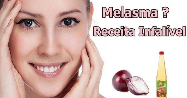 Você esta sofrendo com melasma no rosto ? Melasma são aquelas manchas escuras no rosto, geralmente causadas por anticoncepcionais, ou por e...  MELASMA TRATAMENTO INFALÍVEL com CEBOLA ROXA e VINAGRE DE MAÇÃ http://www.aprendizdecabeleireira.com/2016/10/melasma-tratamento-natural-cebola-vinagre.html