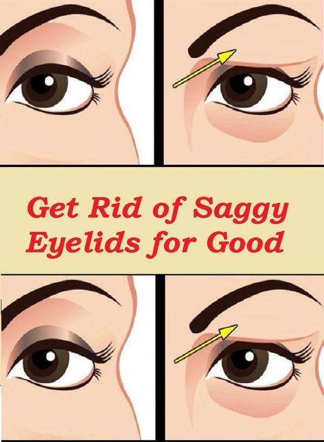 If you are struggling with saggy eyelids, then you must have gone through the frustrating process of applying make-up. The droopy eyelids make you look … Read More ›