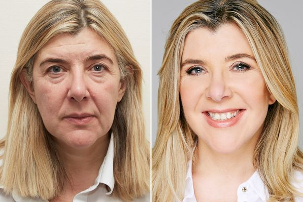 """""""I look like me again!"""" How simple facelift surgery can turn back the clock with incredible results - Mirror Online"""