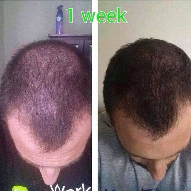 ... on Pinterest | Hair skin nails, It works wraps and It works global
