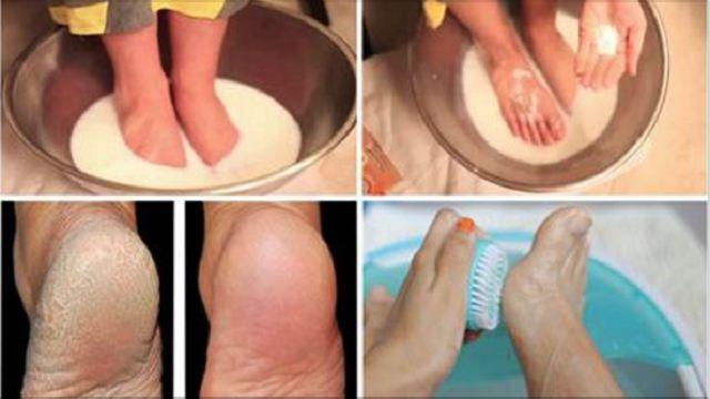 Numerosas personas cuidan de todo su cuerpo, pero olvidan sus pies. Sin embargo, los pies secos y agrietados son extremadamente poc...
