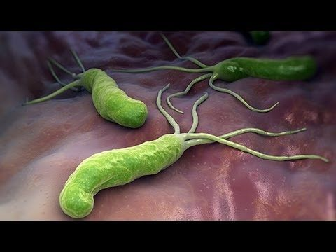 Como Eliminar De Raíz La Bacteria Helicobacter Plyori Que Provoca Gastritis, Úlceras - YouTube