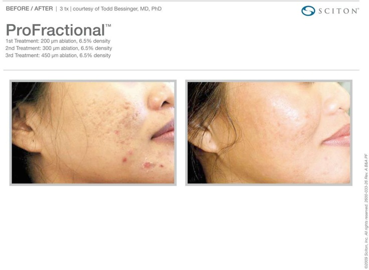 Real results from Sciton's laser resurfacing treatment, ProFractional Therapy: https://www.facebook.com/media/set/?set=a.307208382680172.71239.306756699392007=3