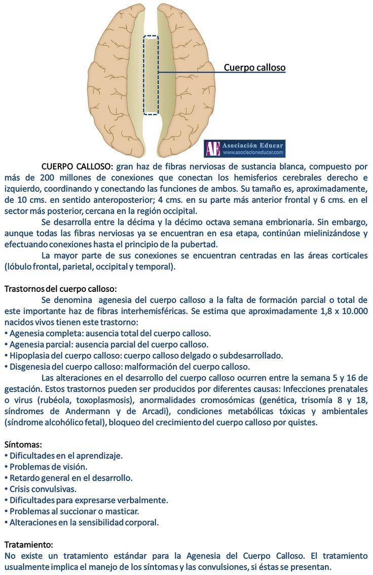 Infografía Neurociencias: Cuerpo calloso | Asociación Educar