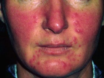 Get more information about Acne Rosacea. Visit www.welcomecure.com Health portal