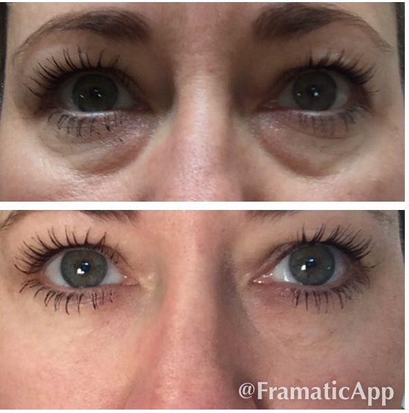 Personal Results! www.drambo.jeunesseglobal.com or message me for info
