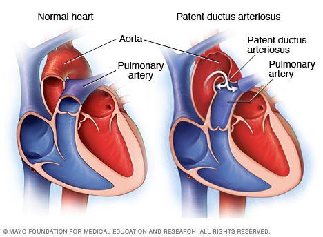 Illustration of a patent ductus arteriosus