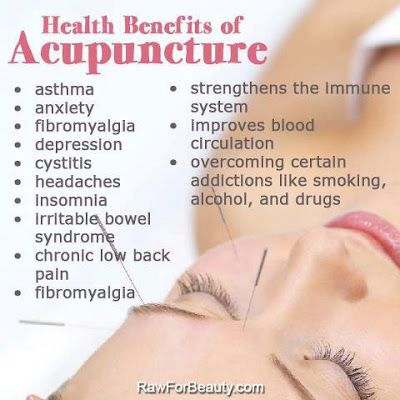 Natural Cures Not Medicine: Health benefits of acupuncture. Did I mention it also helps stiff facial muscles?