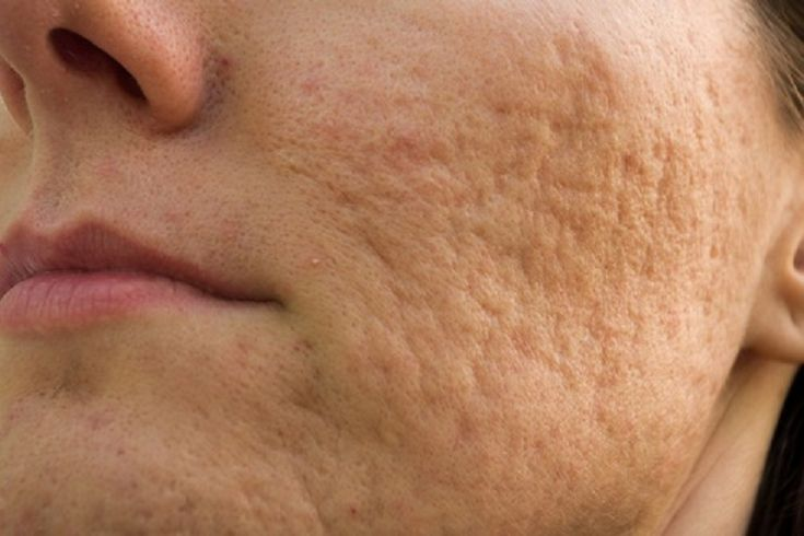 Microdermabrasion and Glycolic Peel: If you live in UK and have been considering a glycolic peel or microdermabrasion treatments, there are several things you should consider before doing either.
