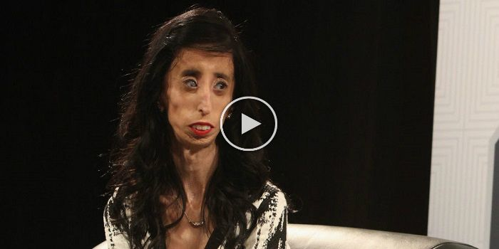 They Said She Is 'World's Ugliest Woman'. What She Did Made Her WORLDWIDE Inspiration!