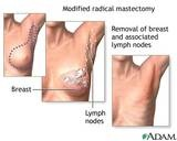 Mastectomy - Surgery for Breast Cancer  I had a radical mastectomy in 08 & then my 1st reconstructive surgery 1 yr later