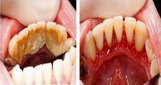 Le tartre est un dépot minéral jaune ou marron sur les dents, qui peut…