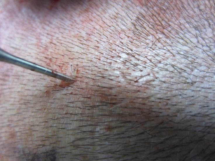 Close up picture of an FUE hair graft from a Hair