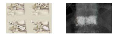 Η σπονδυλοπλαστική και η κυφοπλαστική είναι τεχνικές έγχυσης (ένεση) ακρυλικού «τσιμέντου» απ' ευθείας στο σώμα του  σπονδύλου που έχει υποστεί καταγματική καθίζηση (κάταγμα) με σκοπό την ενίσχυση του οστού και τη βελτίωση του πόνου.  - See more at: http://www.andreasmorakis.gr/σπονδυλοπλαστική-κυφοπλαστική/