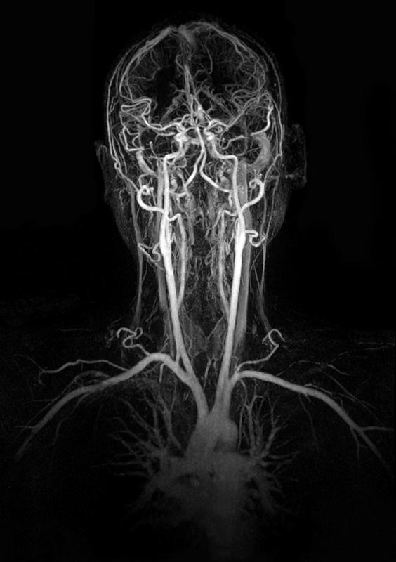 Internal Carotid Artery   Bilateral Internal Carotid Artery Stenosis - Doctor answers on ... 70 % blockage is not good!