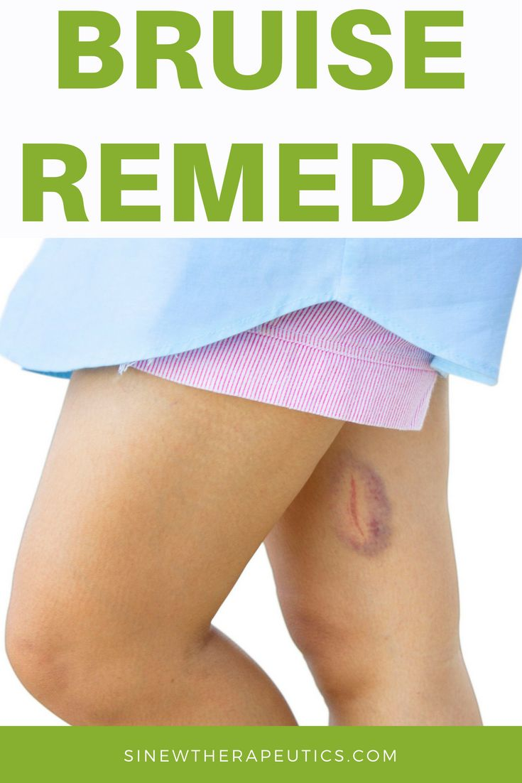 Bruise Remedy - Acute Sinew Liniment is a safe and effective topical herbal remedy specially formulated for use during the acute and post-acute stage. Sinew Therapeutics offers a full line of Sports Injury and Rehabilitation products proven for fast pain relief and quick recovery.