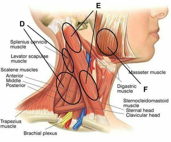 Head and neck massage points for migraines