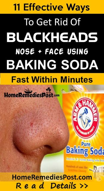 11 Ways To Get Rid Of Blackheads Fast With Baking …