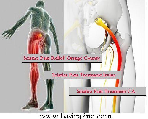 Sciatica Pain Treatment in Irvine California Newport Beach Orange County. We