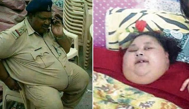 Eman Ahmed vs Daulatram Jogawat: Two obese patients with different treatments At Saifee Hospital Mumbai