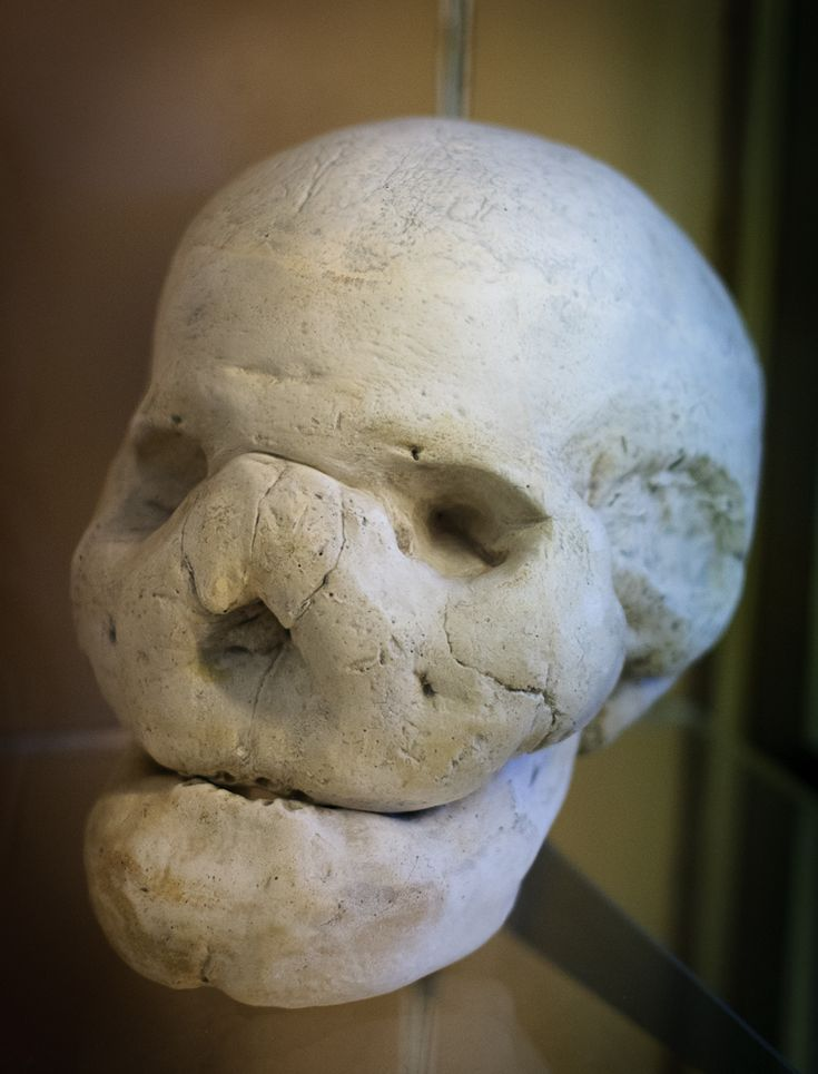"Skull with leontiasis ossea (""Lion face""). This rare condition is symptomatic of several diseases including fibrous dysplasia, Paget's disease, hyperparathyroidism, syphilitic osteoperiostitis and renal osteodystrophy. The condition is characterized by an overgrowth of bone (hyperostosis) in the facial and cranial bones.  www.museocereanatomiche.it/simple.asp?idp=15"