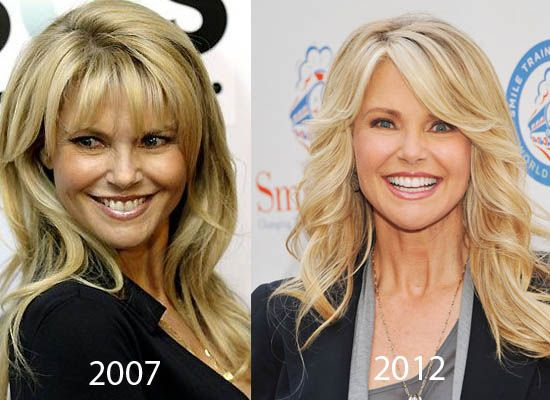 christie brinkley plastic surgery | Christie Brinkley Plastic Surgery Did Senior Model Christie Brinkley ...