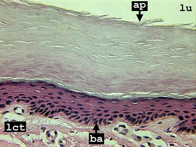 Stratified squamous epithelium - keratinized