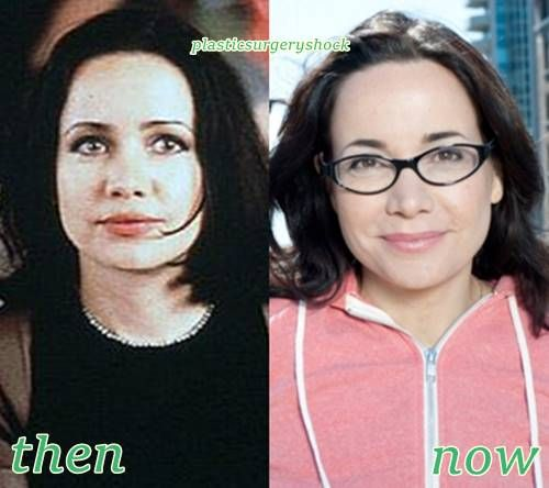 Jeneane Garofalo Plastic Surgery Before and After