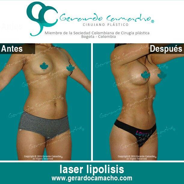 Mamoplastia de Aumento y Lipolisis Laser