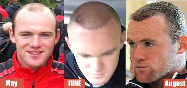 UK footballer Wayne Rooney grows his own (with the help of an FUE hair transplant surgeon).