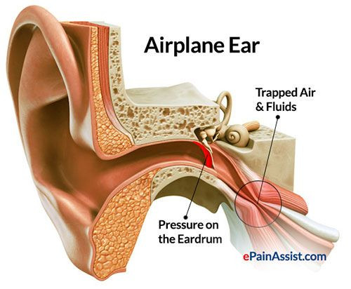 Ear Pain In Flight Is Also Known As Airplane Ear