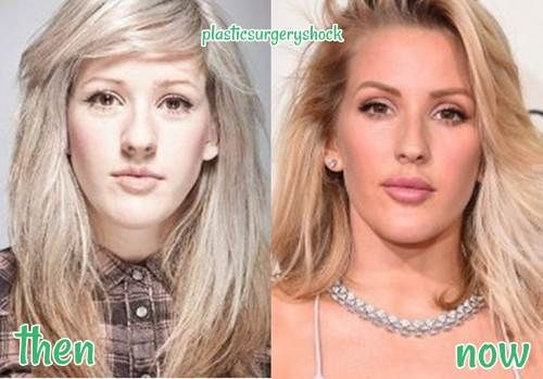 Ellie Goulding Plastic Surgery Before and After nose job
