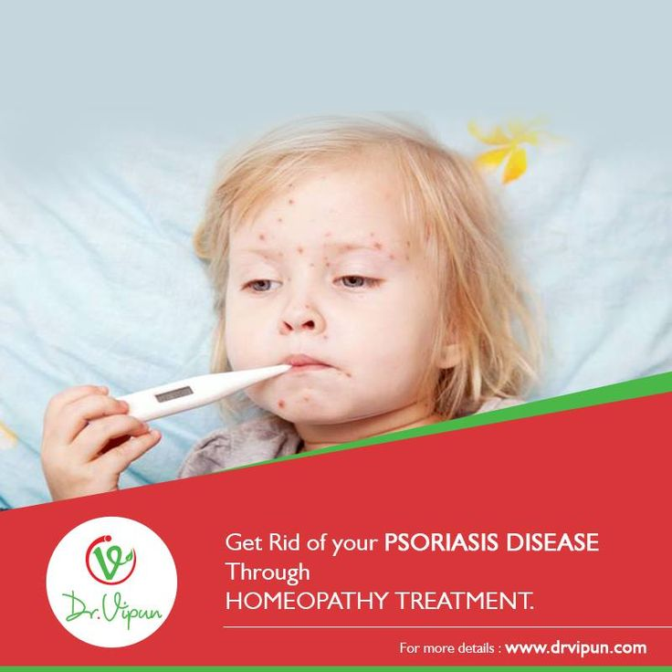 Get Rid of your PSORIASIS DISEASE Through HOMEOPATHY TREATMENT.  For More Info Visit : http://www.drvipun.com/ For appointment call : ☎ 9246373939, ☎ 9963136745 ✉ drvipunr@gmail.com