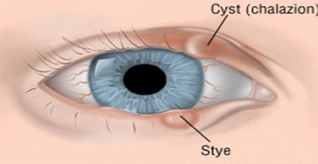 Stye is a disease caused by an infection into the eyelids or due to lack of hygiene that can allow bacteria to cross into the eyelids. Generally, this disease may happen to people of all age…