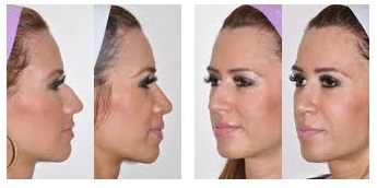Change you looks with rhinoplasty in Dubai