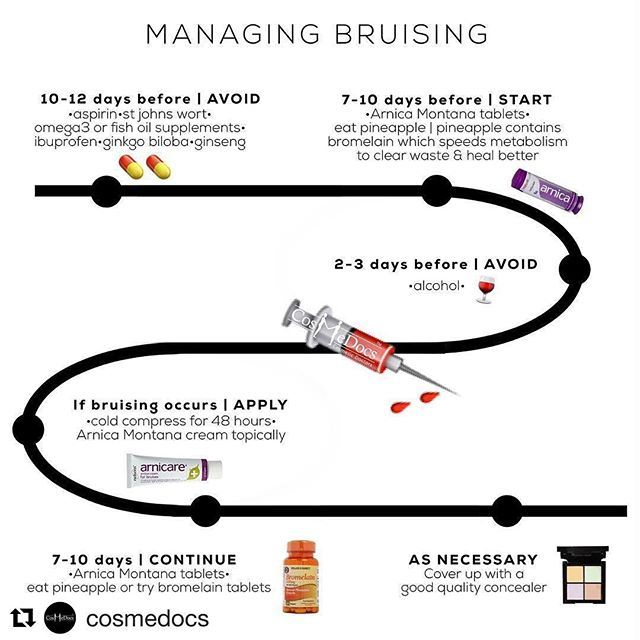 Also, please don't get #injections 2-4 weeks before any important event #bruising #injections #juvederm #restylane #lipfillers #cheekfillers #infographic #arnica #beautynurse #glamnurse #Repost @cosmedocs ・・・ Bruising, probably the most common side effects with injectables. Luckily there are some measures that can be taken to help avoid and speed up recovery should it happen. BEFORE TREATMENT 7-10 DAYS - AVOID any medications (unless necessary) that increase risk such as ibuprofen,
