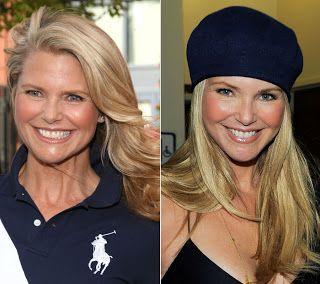 face-lift-surgery-celebrity-face-lift