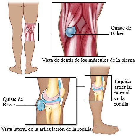 Liquido de la rodilla