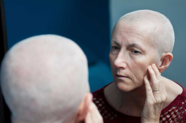 The Taxotere® Lawsuit: Permanent Alopecia Caused By Cancer Treatment