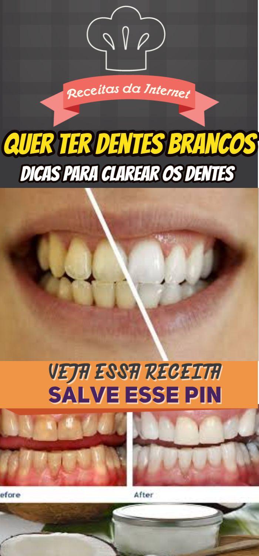 As 10 Dicas Para Clarear Os Dentes Em 3 Dias Dicas De Beleza