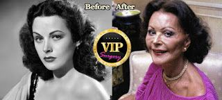 The Untold Stories: Hedy Lamarr: World's Most Beautiful Woman