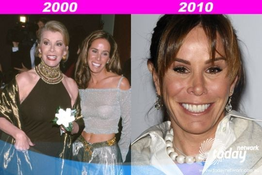 Melissa #Rivers #before #and #after – #Melissa #Rivers