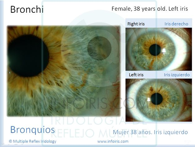 12th Annual International Iridology and Integrative Healthcare Congress. USA 2011- Slide 18. Multiple Reflex Iridology. Javier Echavarren. #iridología #iridologia #iridology #iridologie