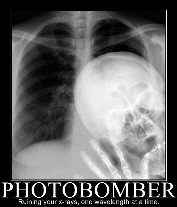 Ruining your x-rays, one wavelength at a time.